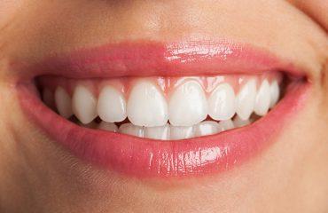 sonrisa-perfecta-imagen-cabecera
