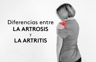 diferencias-entre-la-artrosis-y-la-artritis