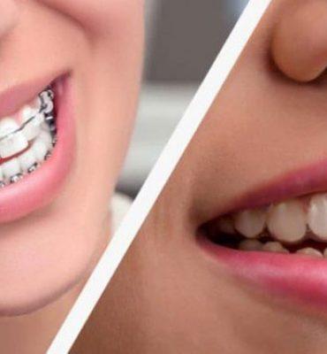 Ortodoncia tradicional y ortodoncia invisible